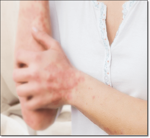 아토피 피부염