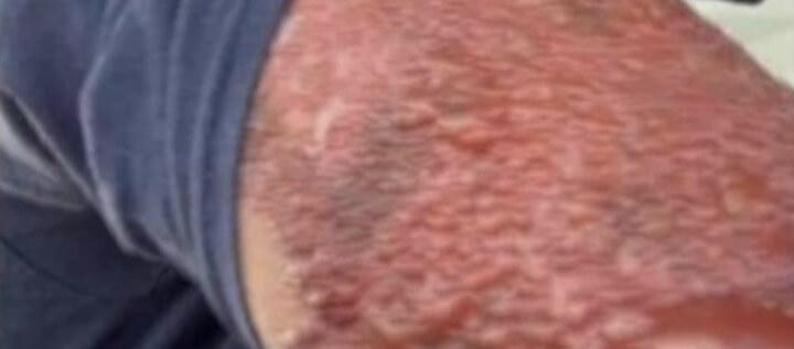 심한-피부-혈전