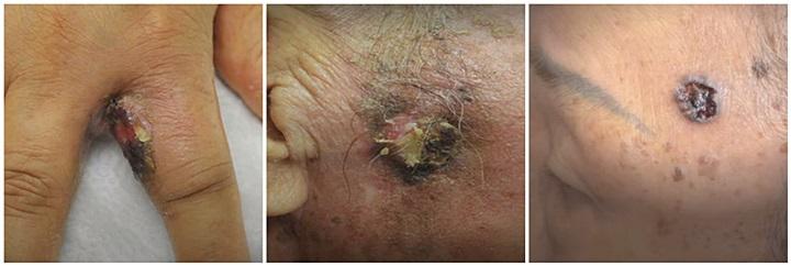 편평세포암-기저세포암