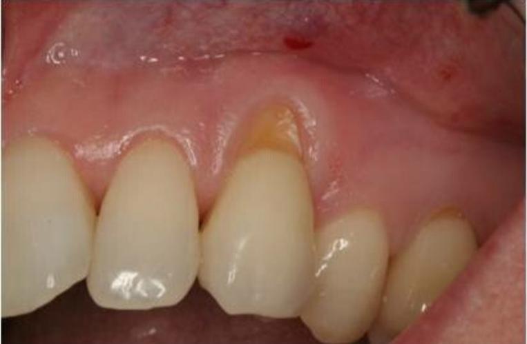 치아교정 부작용