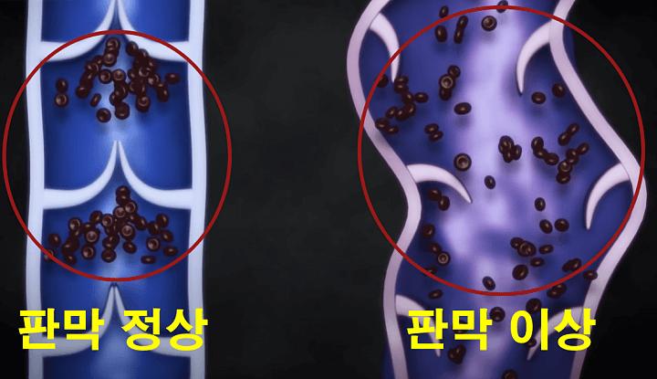정맥-판막-혈액이동