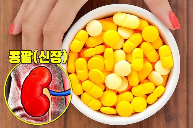 비타민D 비타민C, 콩팥병, 질환별 피해야할 건강식품, 건강, 팁줌 매일꿀정보
