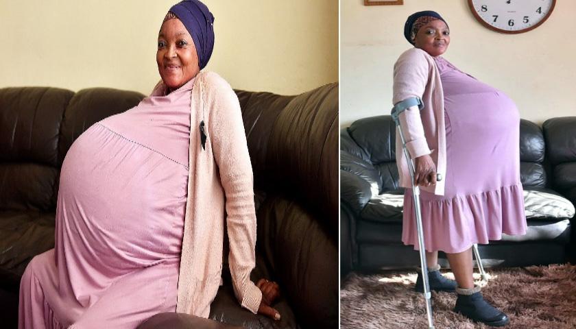 세계 최초 '열 쌍둥이 출산'한 남아공 37살 여성