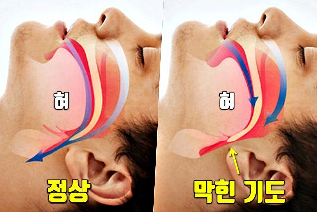 코골이 원인, 수면무호흡증 증세 자가진단, 양압기, 수면 습관, 건강, 매일꿀정보