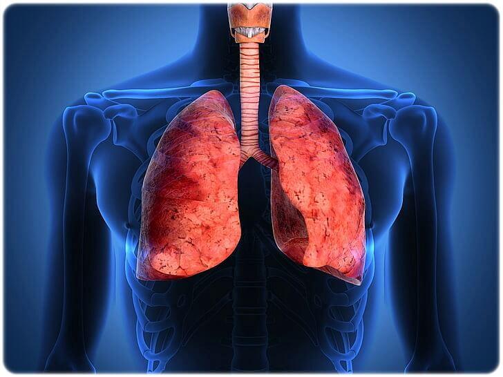 기관지 확장증 증상 원인 치료 관리 예방 방법