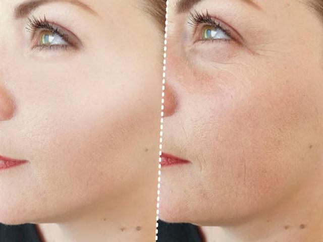30대 후반 여성 급노화, 얼굴 주름살, 피부관리, 자기관리, 건강 뷰티 팁줌 매일꿀정보