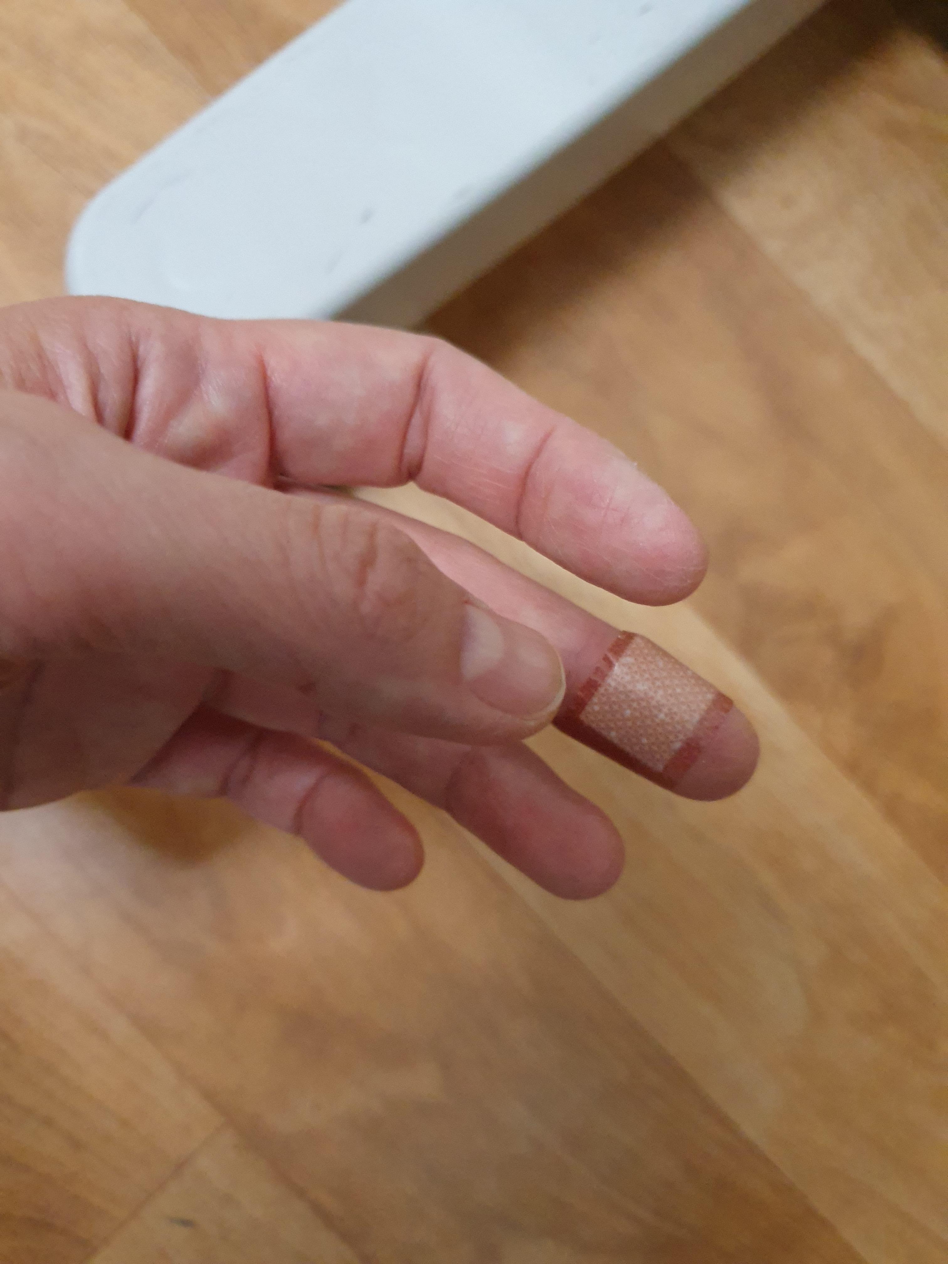 화상(냄비 손잡이에 데이다) : 메디폼과 손끝밴드