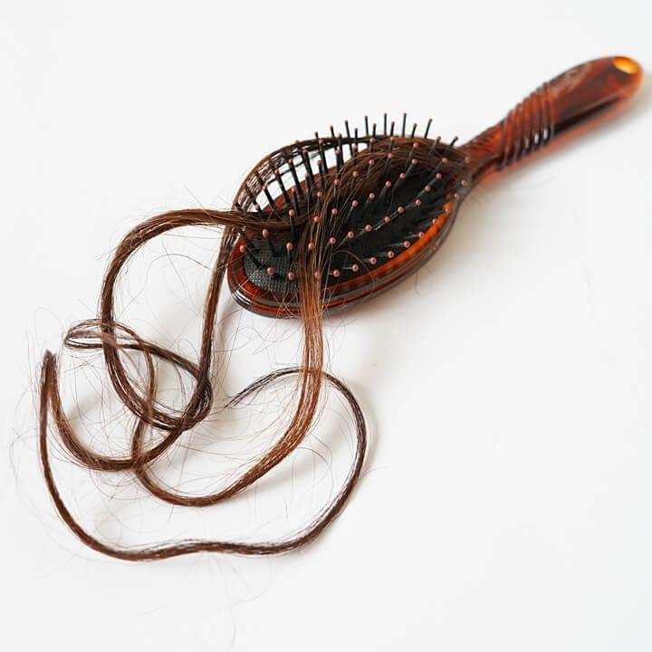 머리카락-탈모