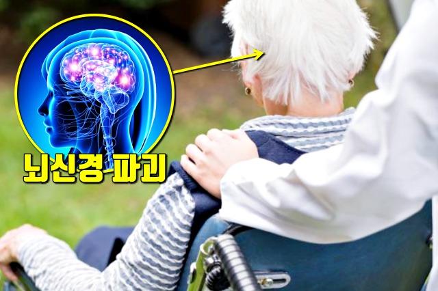 알츠하이머 치매, 잇몸병, 치주질환, 치주염, 풍치, 건강, 팁줌 매일꿀정보