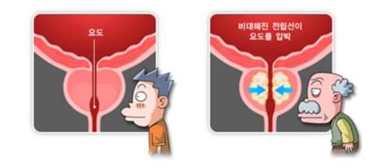 전립선 건강 중요성 사진