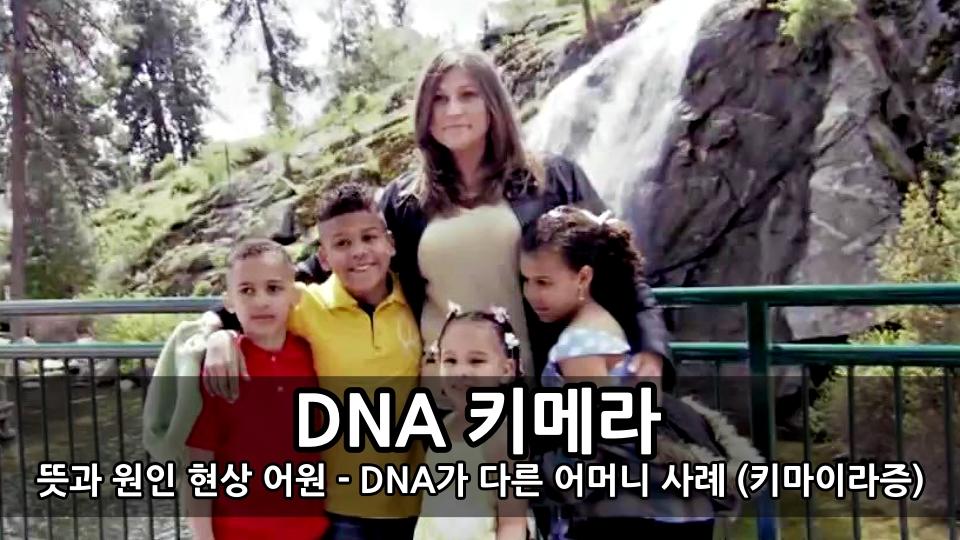 유전자 DNA 키메라의 뜻과 원인 현상 어원 - DNA가 다른 어머니 사례 (키마이라증)