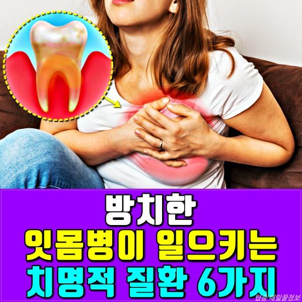 잇몸병, 치주질환, 치주염, 풍치, 건강, 팁줌 매일꿀정보