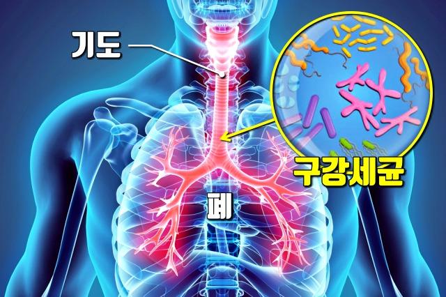 폐렴, 잇몸병, 치주질환, 치주염, 풍치, 건강, 팁줌 매일꿀정보