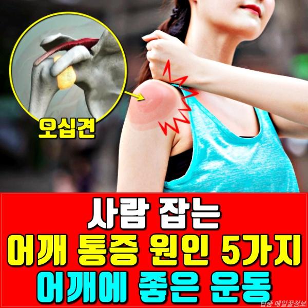 어깨통증 원인, 오십견 증상, 회전근개파열 치료, 어깨운동, 건강, 팁줌마 매일꿀정보