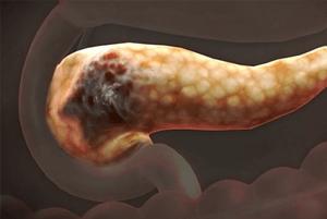 췌장암 초기 증상03