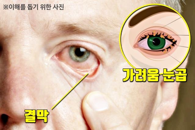 눈병 결막염 증상 원인, 여름에 많이 걸리는 병, 건강 팁줌마 매일꿀정보