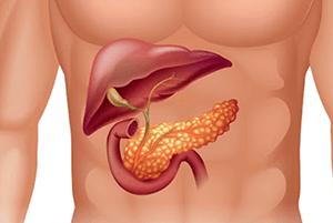 췌장암 초기 증상02
