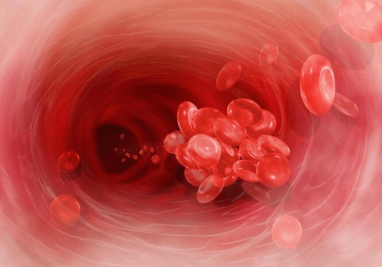 혈액순환-개선-방법