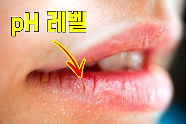 입술 건조 수분 부족 증상 현상, 건강 팁줌 매일꿀정보