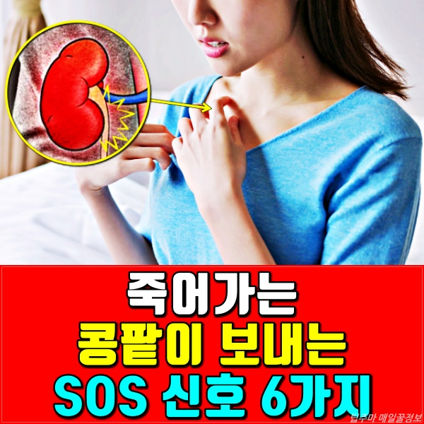콩팥이 안좋을때 증상, 콩팥병, 신부전증, 신장이 안좋을때 나타나는 증상, 건강, 팁줌마 매일꿀정보