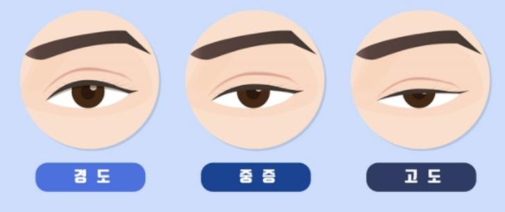 안검하수-단계별-그림