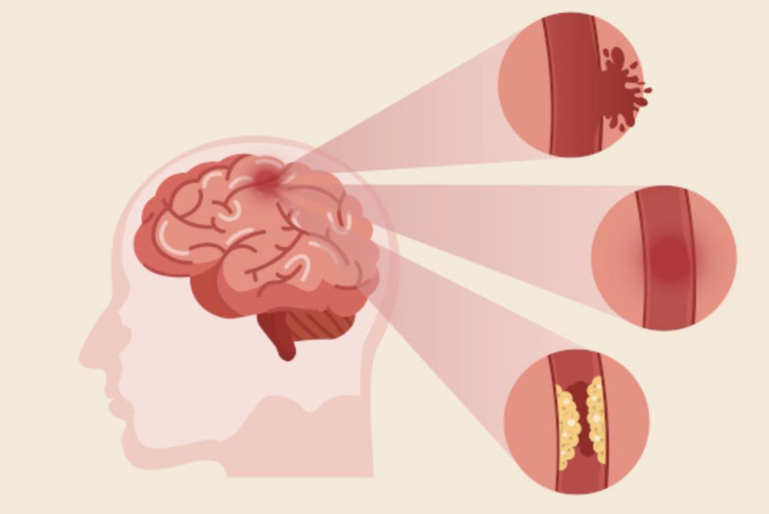 뇌-혈액-막힘
