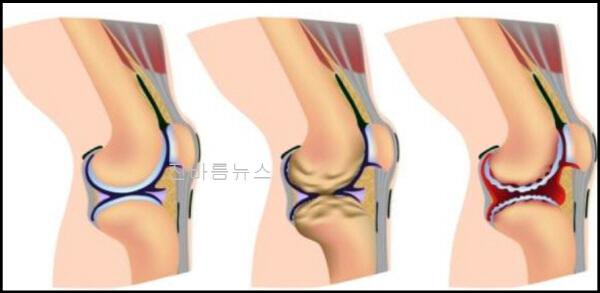 관절염-개선-효능