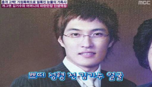 김기수 프로필 과거사진 성형전후 나이 키 군대 결혼 제이홉 고향 코 안면윤곽
