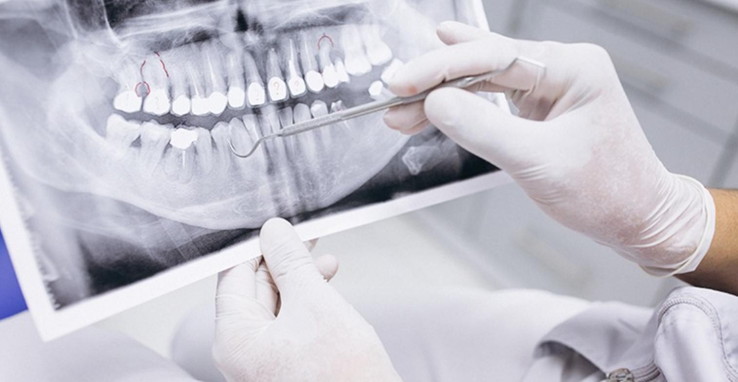치아-임플란트-엑스레이-사진