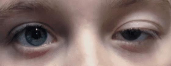 안검하수 눈