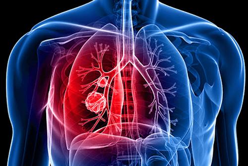 폐암초기증상04