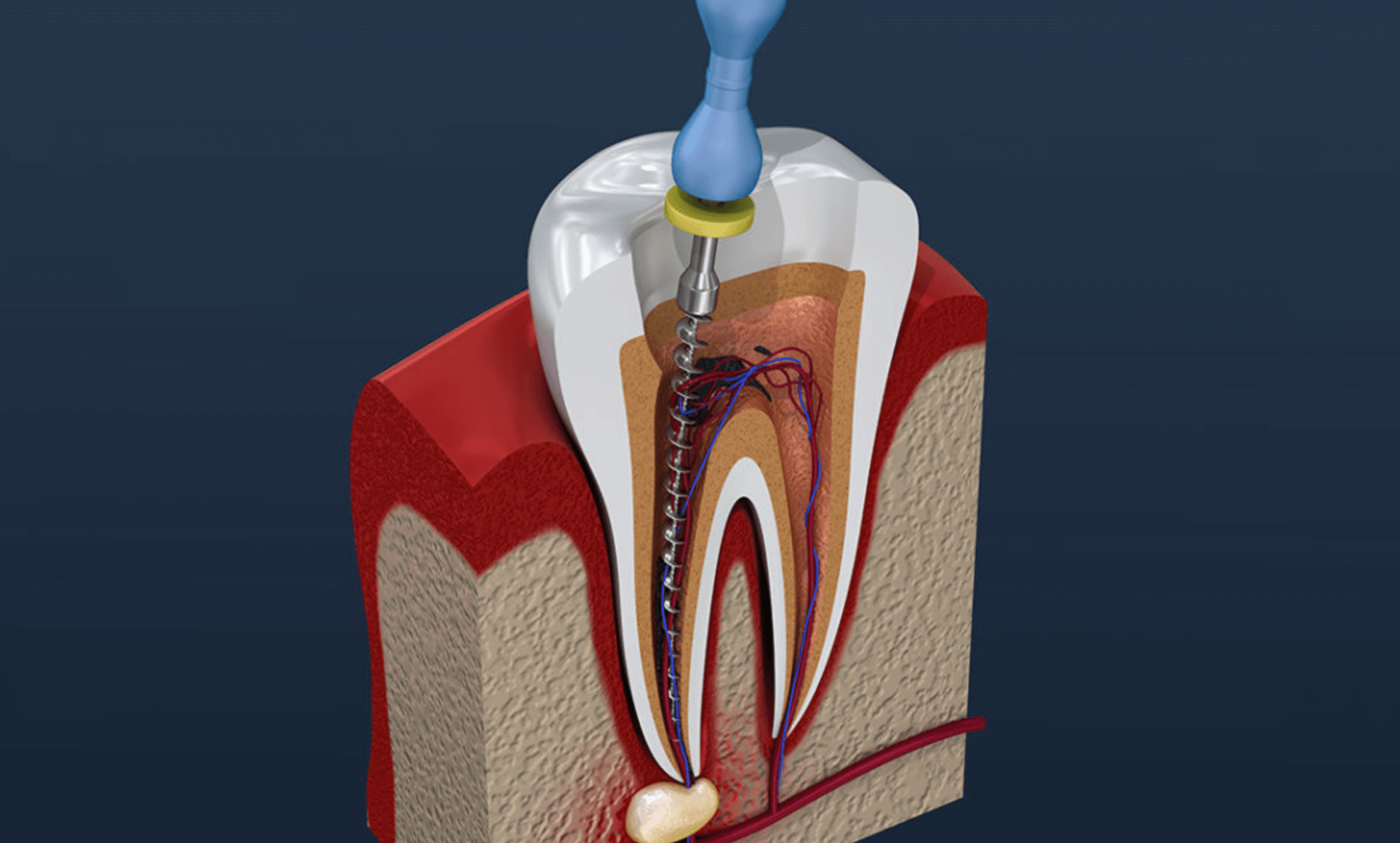 치아-신경치료