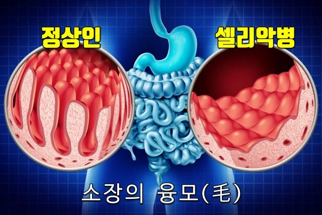 셀리악병 증상 원인, 의사 오진율, 의사 오진 대응 방안,웰빙 건강 팁줌 매일꿀정보