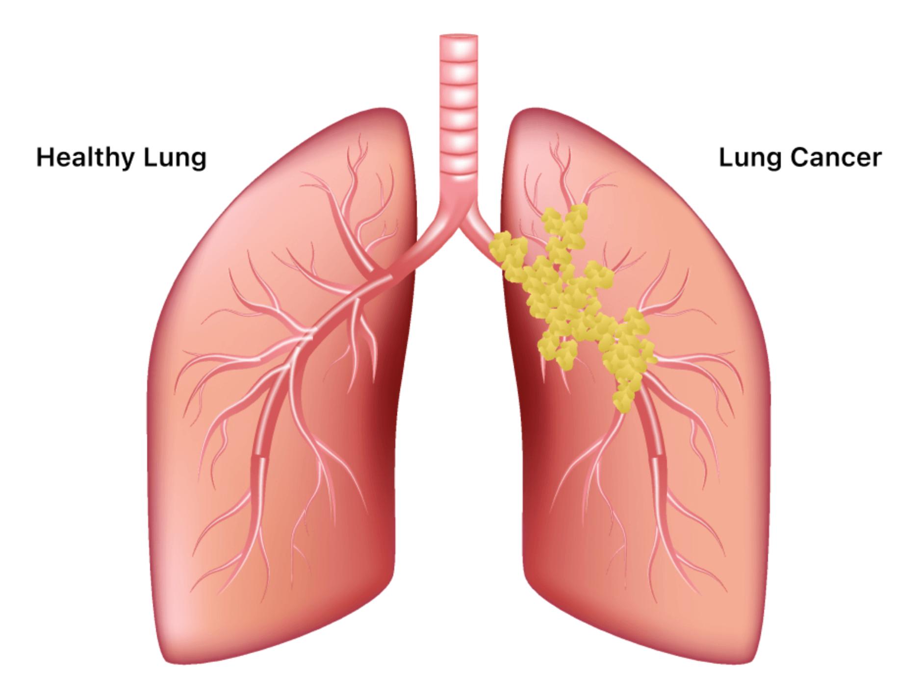 폐암-모습