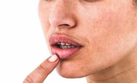 구내염 증상
