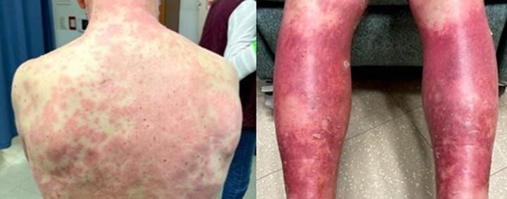 피부-발진과-혈전