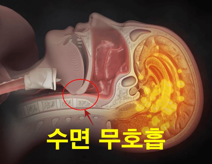 수면무호흡증-원리